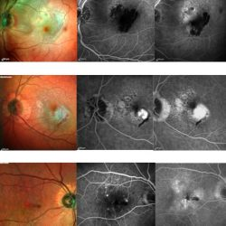 Différentes formes cliniques de DMLA exsudative